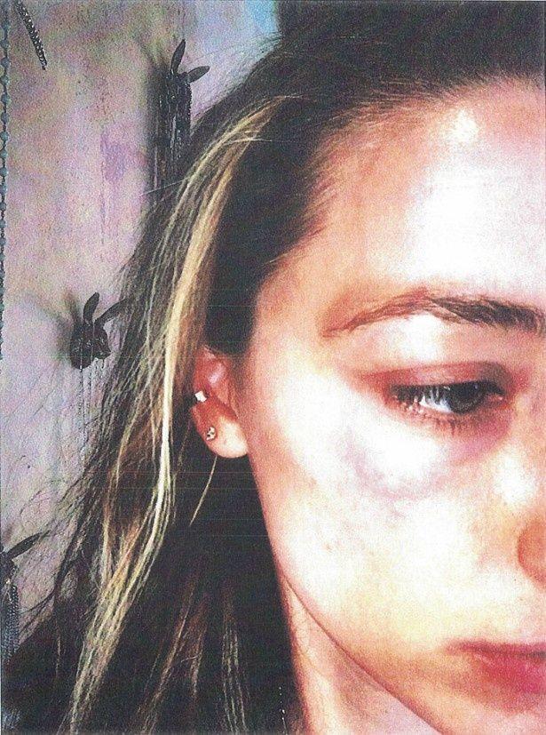 【写真を見る】ジョニー・デップからの暴力でできたというアンバーのあざの写真